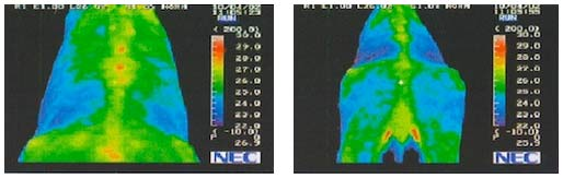 thermography 1