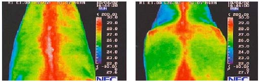 thermography 3
